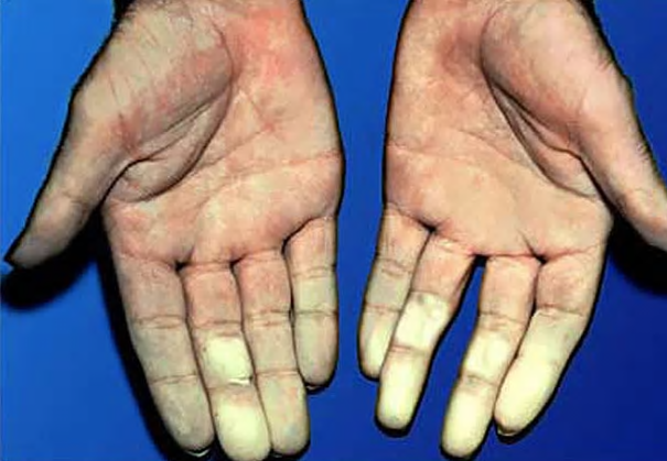 The Effect of Hyperbaric Oxygen on Schleroderma